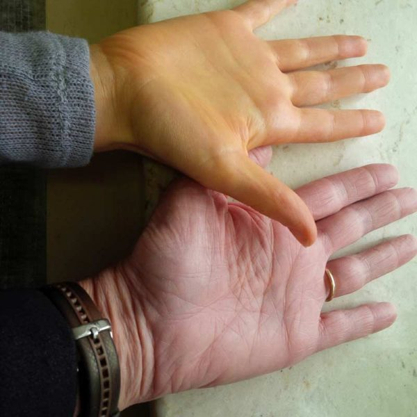 Hands from too many carrots | Nutrition Assessment Clinic
